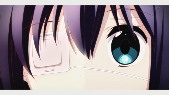Chu2koi experiment eyepatch final
